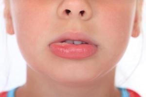 lip_swelling