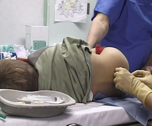 Doctor Anal Exam Tube Search 187 videos - NudeVista